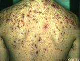 好嚴重的痘痘,要注意臉部及身體的清潔
