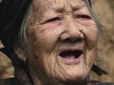 中國百歲女人瑞頭部長出魔鬼之角