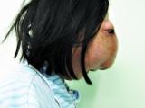 """22歲女孩顱內長巨瘤 面部畸形像""""阿凡達"""""""
