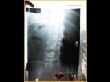 在X光片出現鬼臉