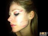艾薇兒毀容滿臉傷 受傷照片、影片曝光