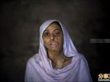 阿富汗女性被硫酸毁容