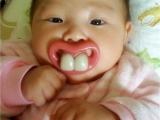 媽咪我的牙會不會太突兀