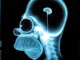 不可思議的x-ray