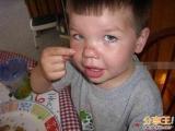 痛!!!叉子插入鼻子