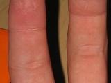 恐怖的手指病變!