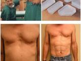 型男的整型手術 人造8塊腹肌