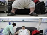 中國第一胖的煩惱生活!你到底吃了什麼弄成這樣??