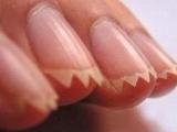 可怕的指甲